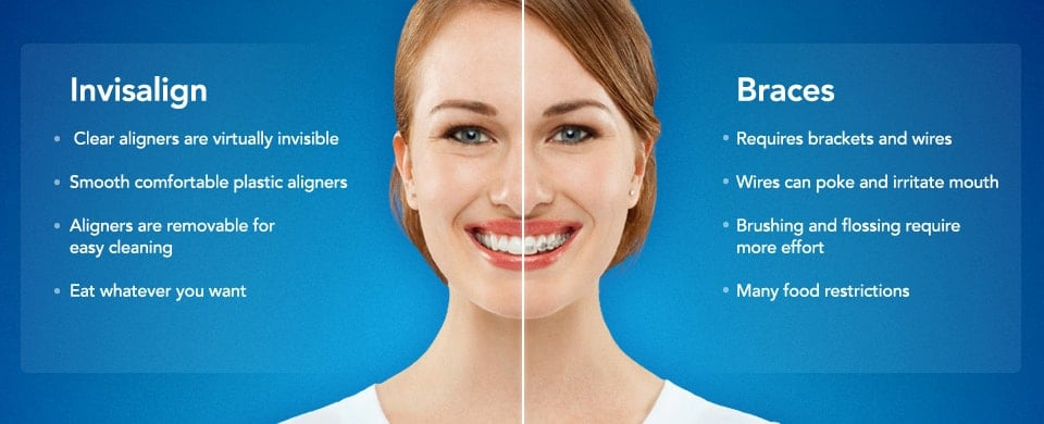 invisalign-treatetment-melbourne.jpg