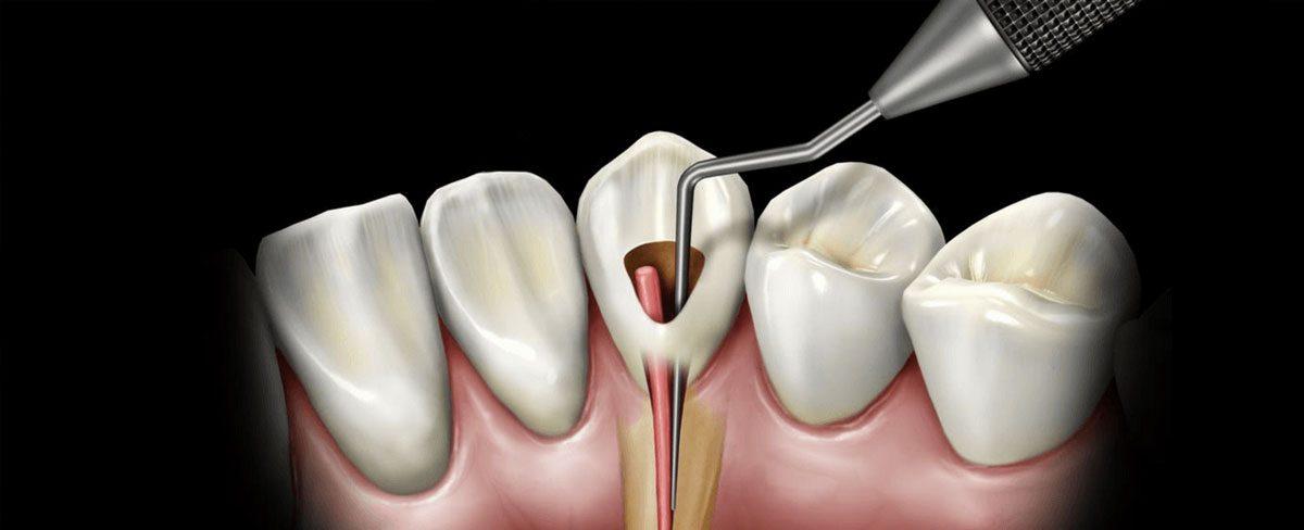 Rotary-Endodontics-1200x488.jpg