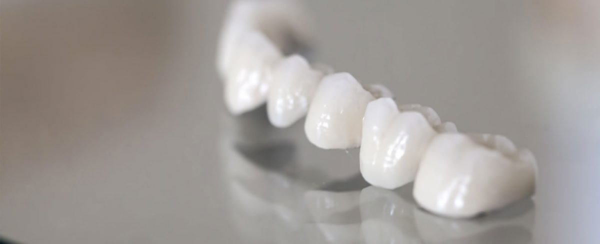 dental-bridge-1200x488.jpg
