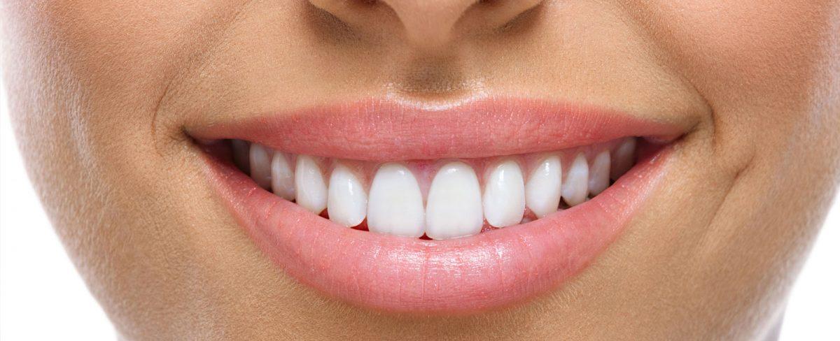 dental-crowns-1200x488.jpg