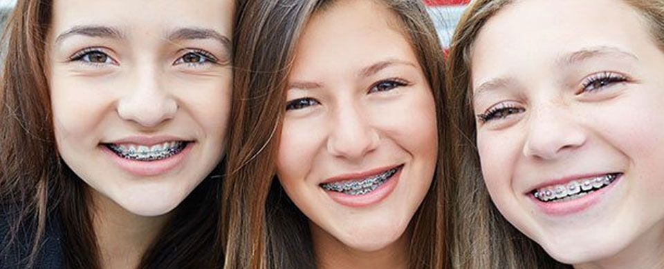 traditional-braces.jpg