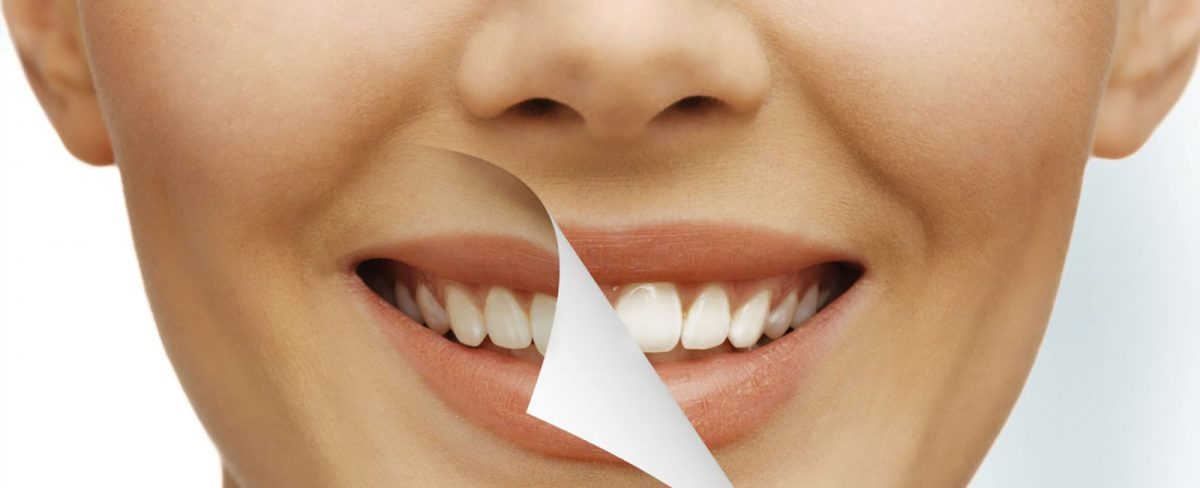 white-teeth-1200x488.jpg