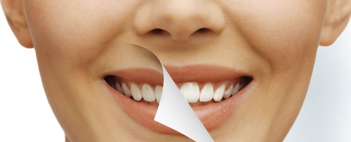 white-teeth-1200x488.jpg